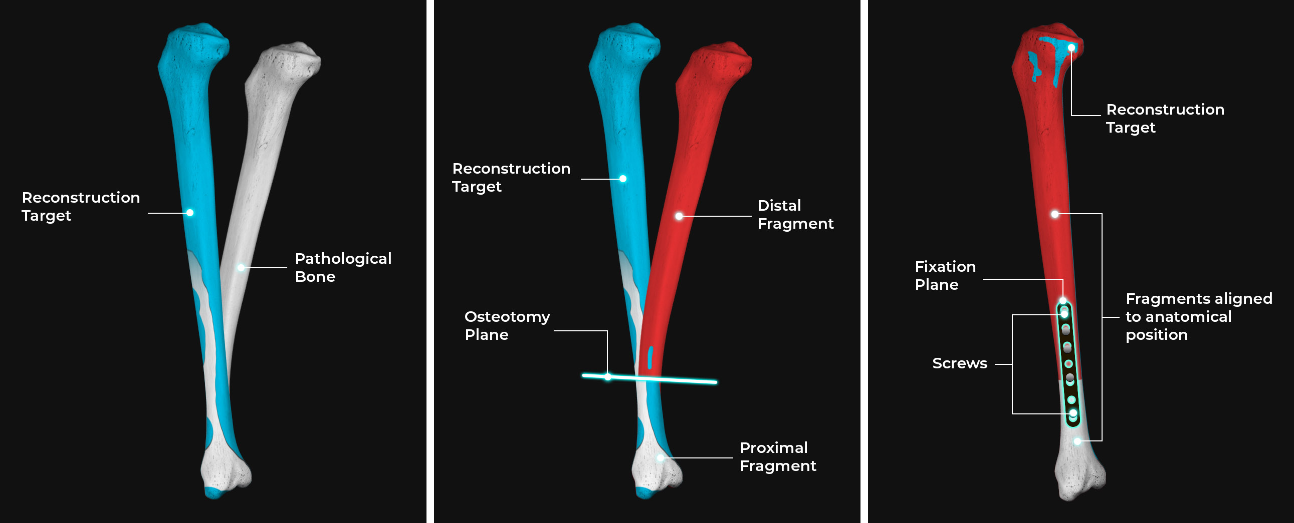 3D bone reconstruction