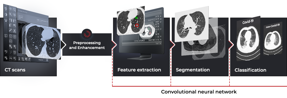 AI-powered CT image analysis